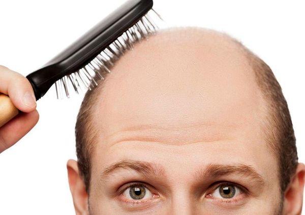 ۵ روش ارزان برای جلوگیری از ریزش موی آقایان