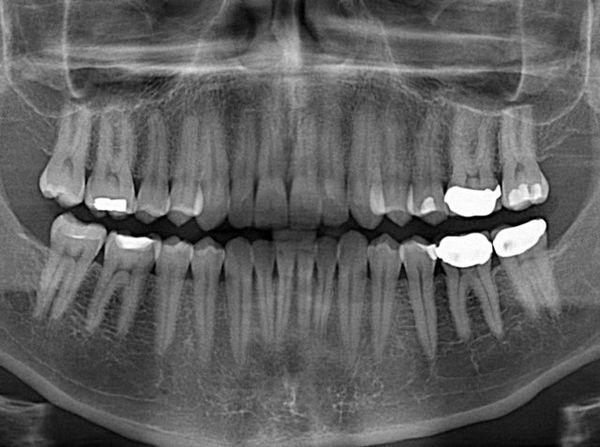 پوسیدگی دندانی، دومین بیماری عفونی قرن در کشورهای جهان سوم